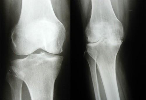 Артрит коленного сустава - симптомы и лечение, ревматоидный ...