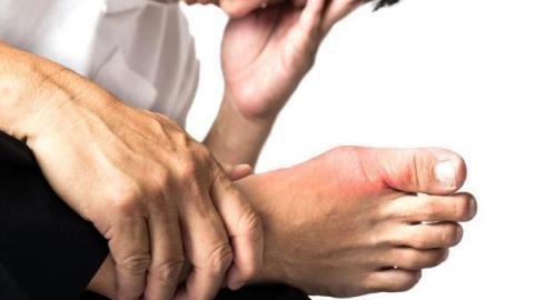 Подагрический артрит стопы - симптомы и лечение, фото, чем лечить